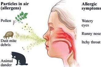 Fexofenadine a First-Line Option for Seasonal Allergic Rhinitis and Chronic...